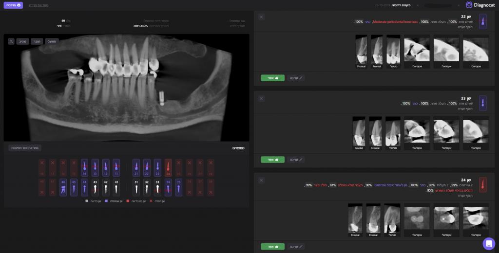 בינה מלאכותית ככלי-עזר לפיענוח איכותי יותר של CT דנטלי – Diagnocat